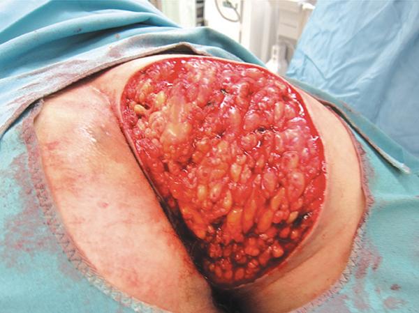 acné rosacée menton que faire