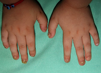 Лечение с урина при псориазис